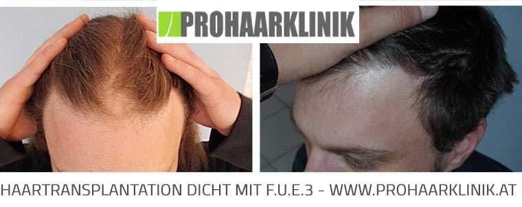 Haartransplantation Resultat Wien