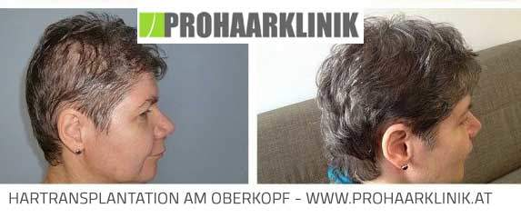 Haartransplantation Kosten