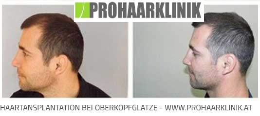FUE Haartransplantation - Nachher