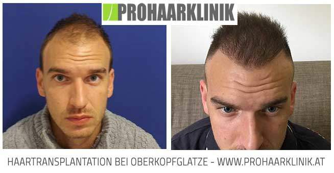 Haartransplantation Medium Bilder