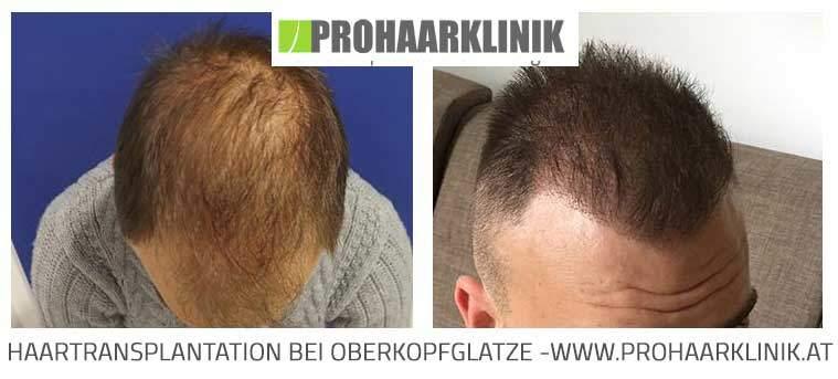 Haarimplantation Ergebnisse