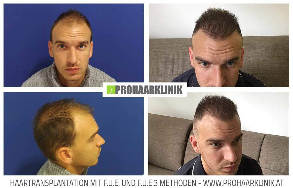 Haarimplantation Ergebnisse - Medium Fotos