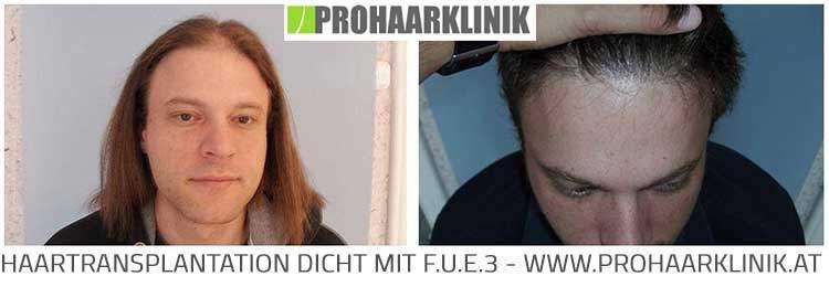 FUE Haartransplantation Fotos