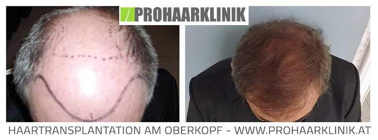 Haartransplantation Vorher Nachher - Klagenfurt