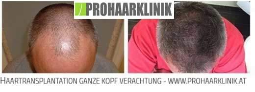 Haartransplantation, Haarimplantation nahe Vorarlberg