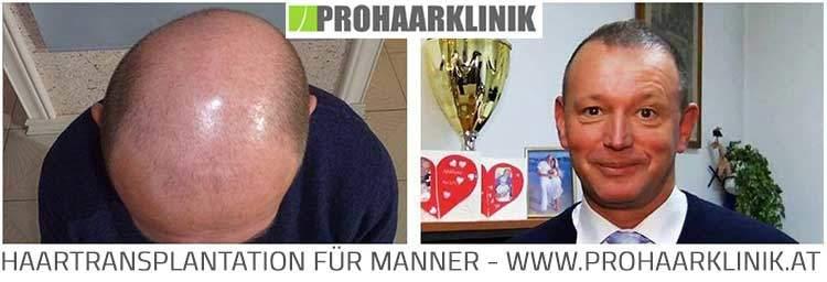 Haartransplantation, Haarimplantation Resultat Bilder