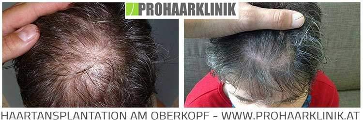 FUE Haartransplantation am Oberkopf