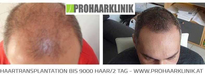 FUE Haartransplantation - Zoltan