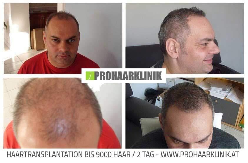 Haartransplantation Wien