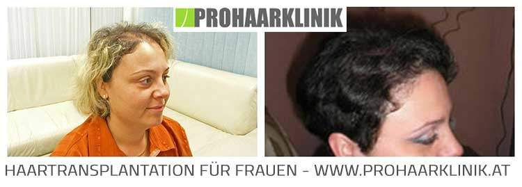 Haartransplantation Frauen Ergebnisse