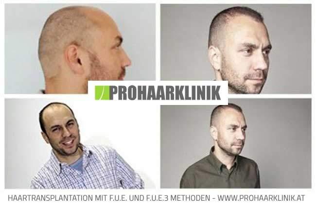 FUE Haartransplantation Resultat Bilder