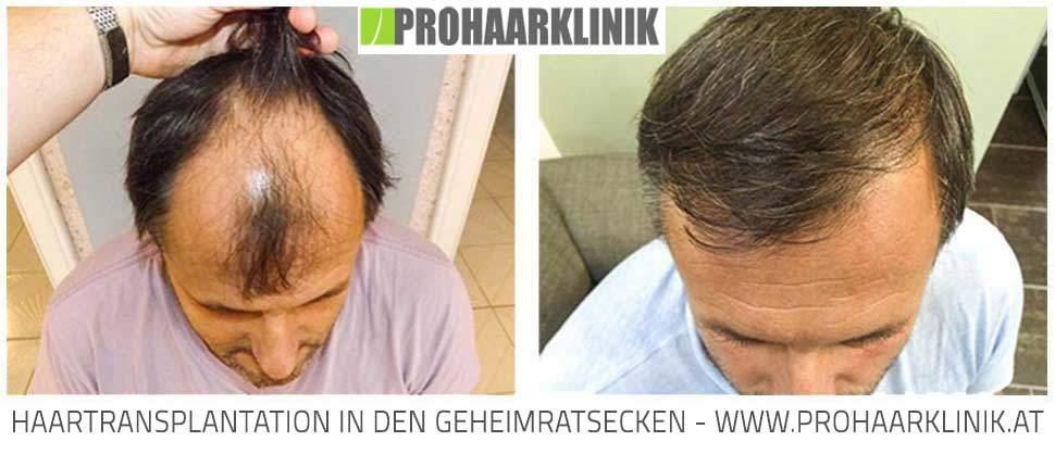 Haartransplantation Vorher Nachher - Deutschland