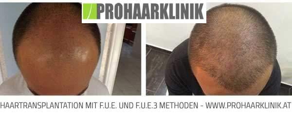 FUE Haartransplantation - Bilder
