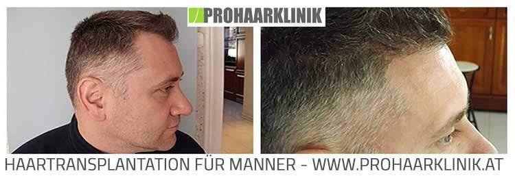 Haartransplantation vorher nachher - Balazs S.