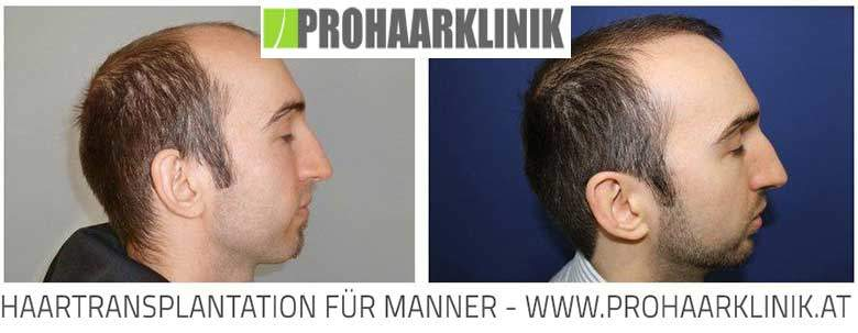 Haartransplantation Ergebnis - 10500 Haare