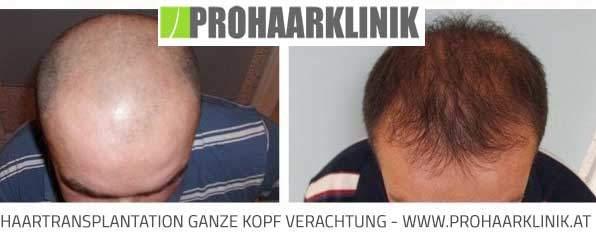 FUE Haartransplantation Method - Vorher Nachher