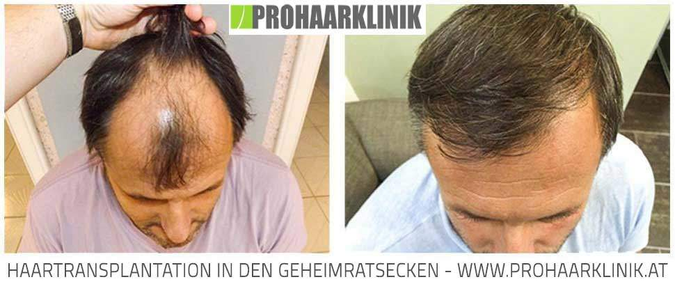 Haartransplantation mit FUE Method