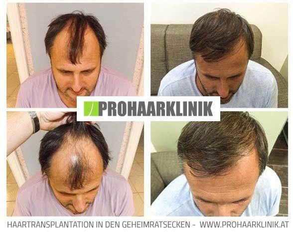 Haartransplantation, Haarimplantation Ergebnisse