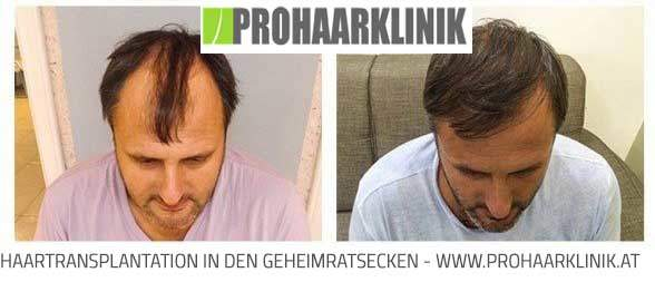 FUE Haartransplantation Ergebnisse - Deutschland