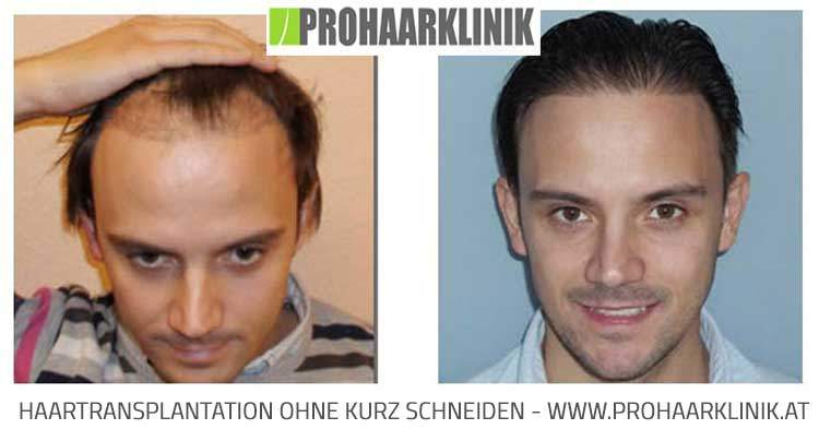 Haartransplantation ohne kurz schneiden