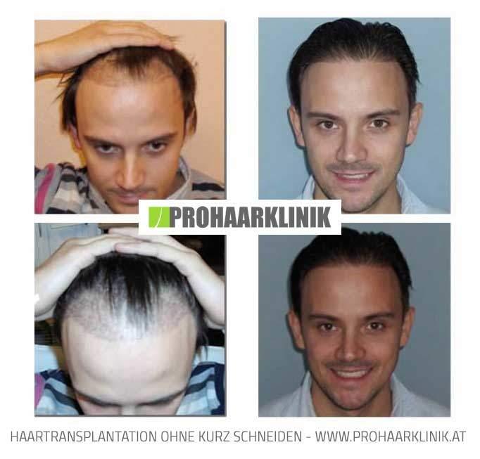 Vorher Nachher haartransplantation vorher nachher m s