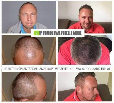 FUE Haartransplantation für Manner Bild