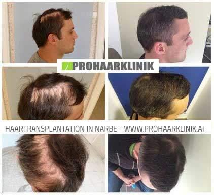 Haartransplanbtation mit 5000 Haare - Ergebnis Fotos