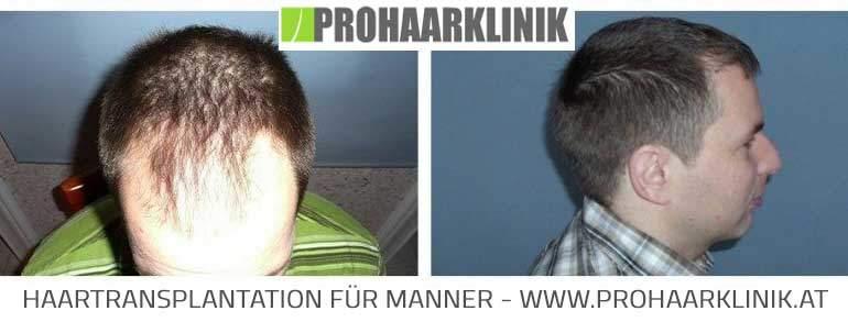 Haarverpflanzung in der PROHAARKLINIK