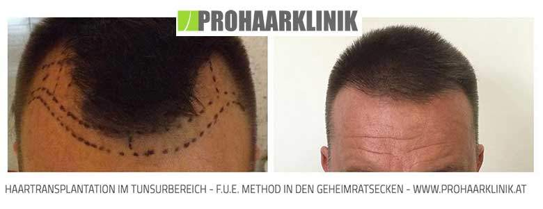 Haartransplantation - PROHAARKLINIK