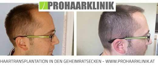 Haartransplantation Ergebnis - Medium Fotos