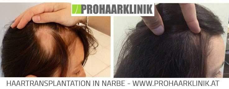 Haartransplantation für Frauen - Ergebnisse
