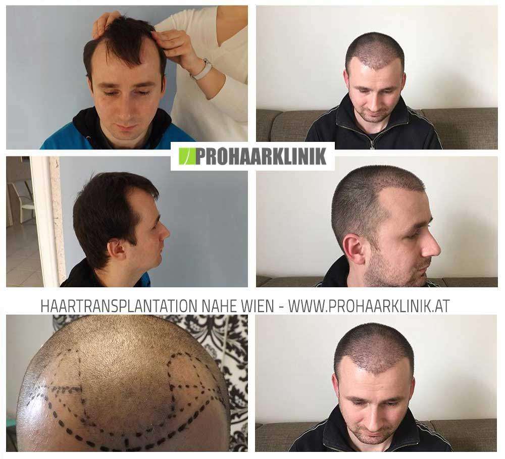 Haartransplantation Resultat- Mit FUE Method