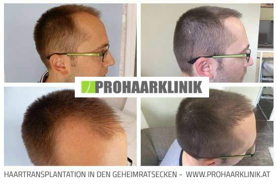 FUE Haarverpflanzung - Haartransplantation Fotos