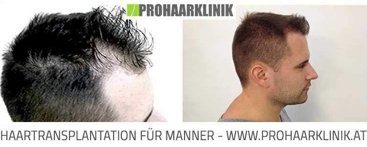 Haartransplantation, Haarimplantation Ergebnis