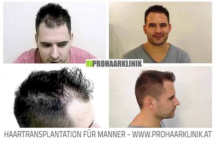 FUE Haartransplantation - Andras