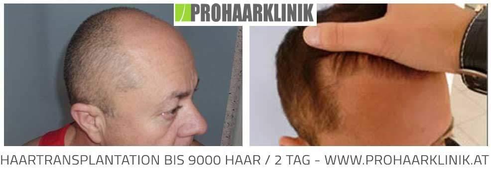FUE Haartransplantation Technik - Vorher Nachher