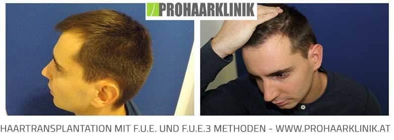 FUE Haartransplantation - Vorher Nachher