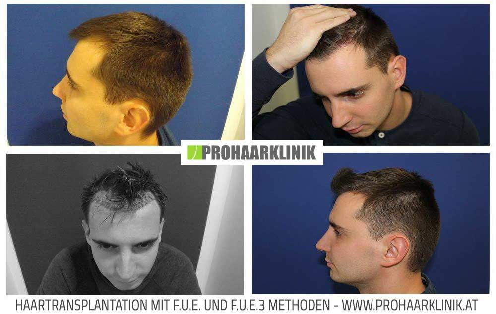 Haartransplantation, Haarimplantation für Manner