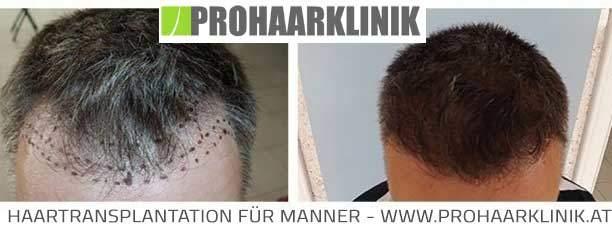 Haartransplantation Behandlungsablauf