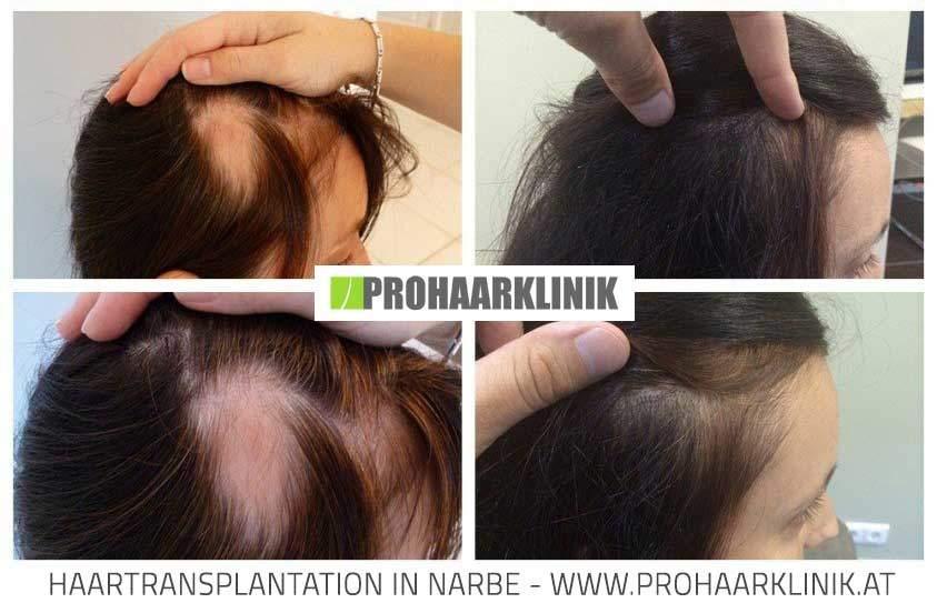 Haartransplantation, Haarimplantation für Frauen