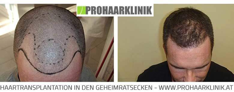 Haartransplantation in der PROHAARKLINIK