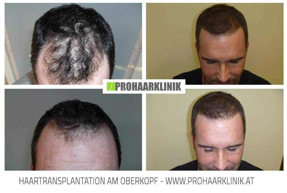 Haarverpflanzung, Haartransplantation - Zsolt