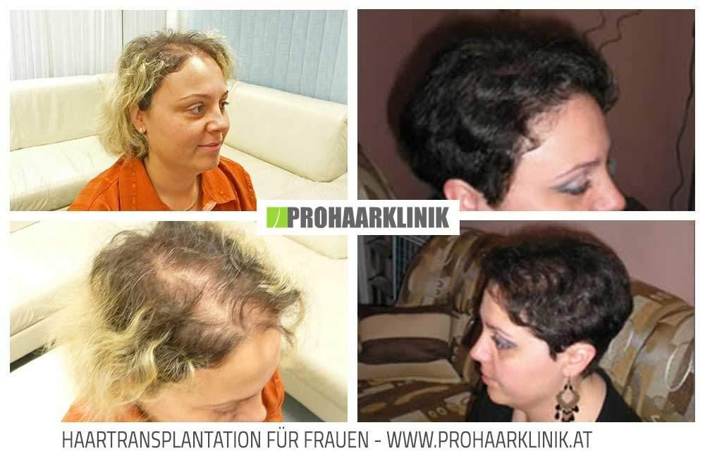 Haartransplantation, Haarverpflanzung Frauen Bilder