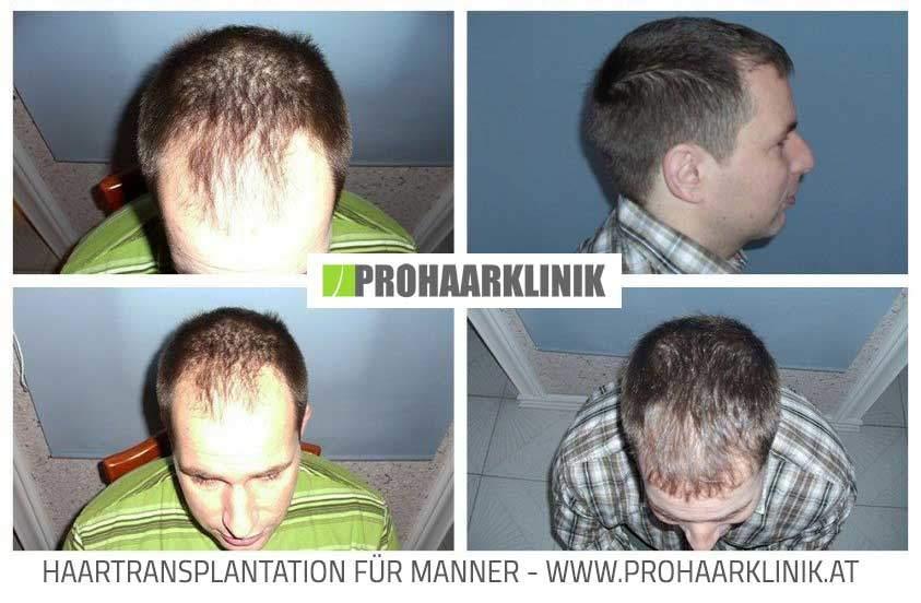 Haartransplantation Resultat - PROHAARKLINIK