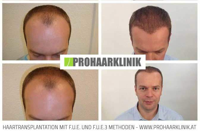 Haartransplantation Ergebnis von Thomas L.