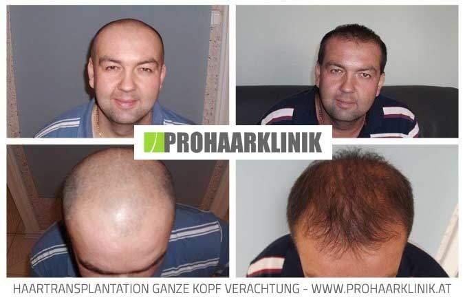 FUE Haarverpflanzung