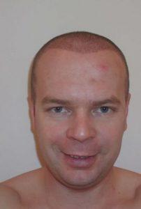 Haartransplantation Erfahrungen eines Patienten