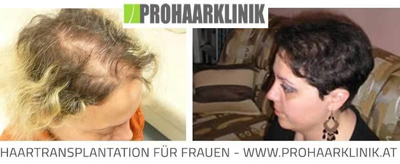 Haartransplantation für Frauen - Vorher Nachher