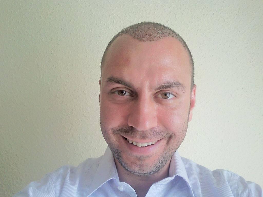 Ansicht von vorne nach der Haartransplantation