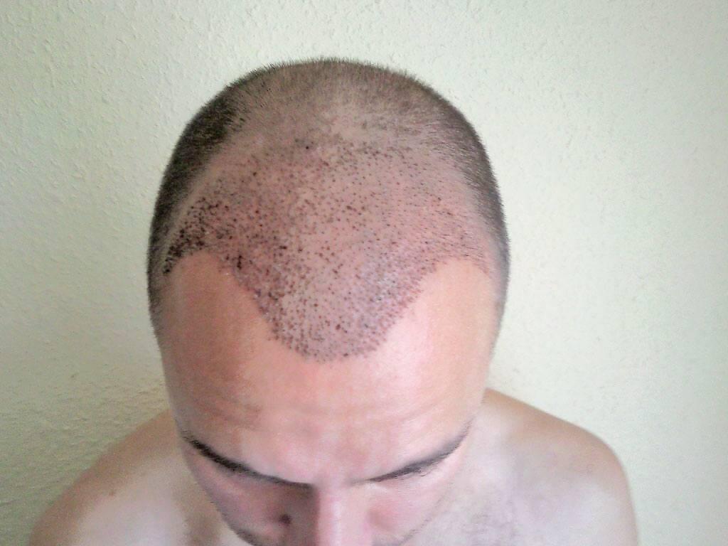 Ansicht von oben nach der Haartransplantation